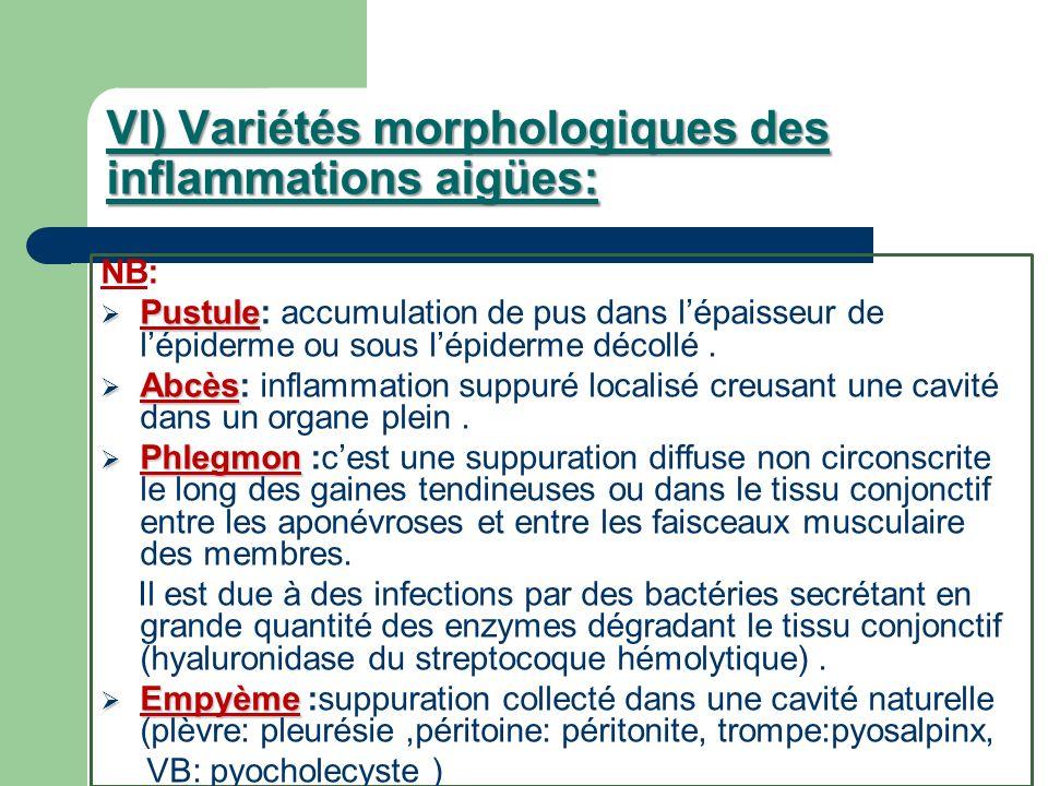 VI) Variétés morphologiques des inflammations aigües: NB: Pustule Pustule: accumulation de pus dans lépaisseur de lépiderme ou sous lépiderme décollé.