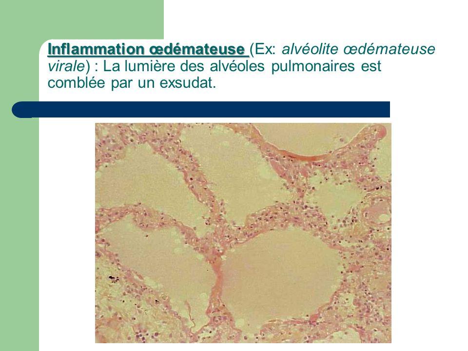Inflammation œdémateuse Inflammation œdémateuse (Ex: alvéolite œdémateuse virale) : La lumière des alvéoles pulmonaires est comblée par un exsudat.