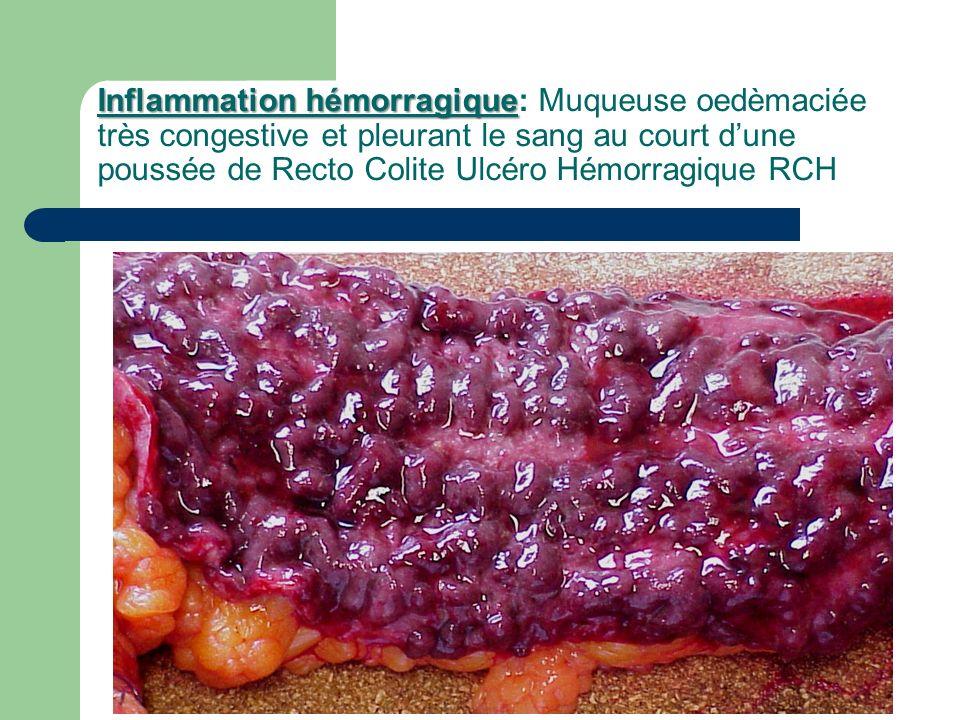 Inflammation hémorragique Inflammation hémorragique: Muqueuse oedèmaciée très congestive et pleurant le sang au court dune poussée de Recto Colite Ulc