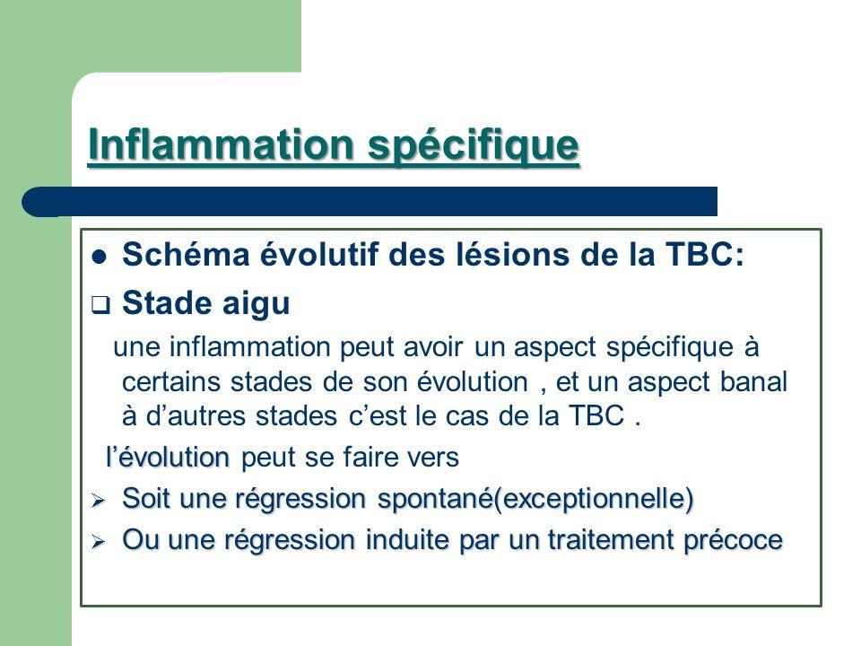 Inflammation spécifique Schéma évolutif des lésions de la TBC: Stade aigu une inflammation peut avoir un aspect spécifique à certains stades de son év