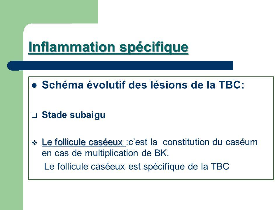 Inflammation spécifique Schéma évolutif des lésions de la TBC: Stade subaigu Le follicule caséeux Le follicule caséeux :cest la constitution du caséum