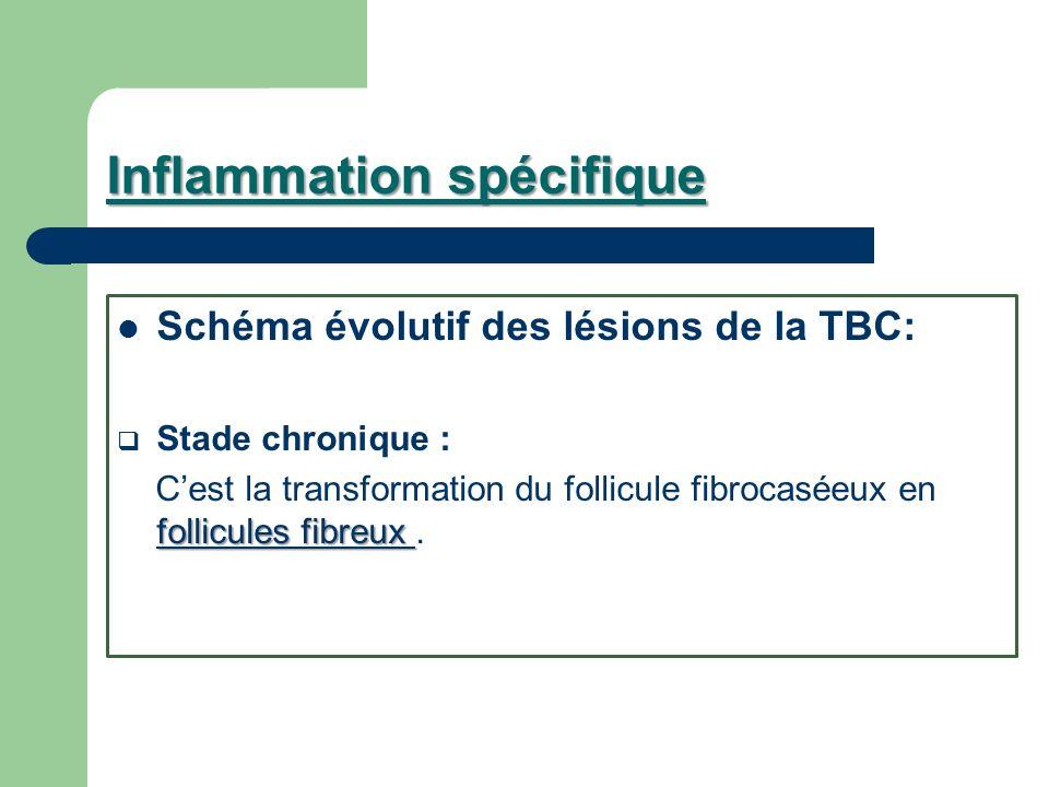 Inflammation spécifique Schéma évolutif des lésions de la TBC: Stade chronique : follicules fibreux Cest la transformation du follicule fibrocaséeux e