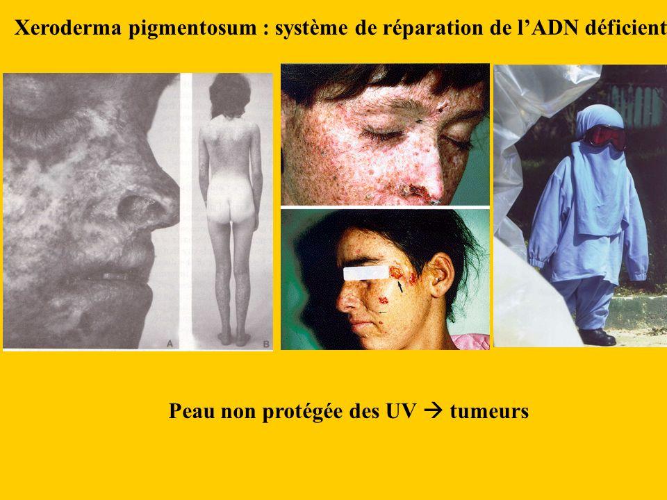 Xeroderma pigmentosum : système de réparation de lADN déficient Peau non protégée des UV tumeurs