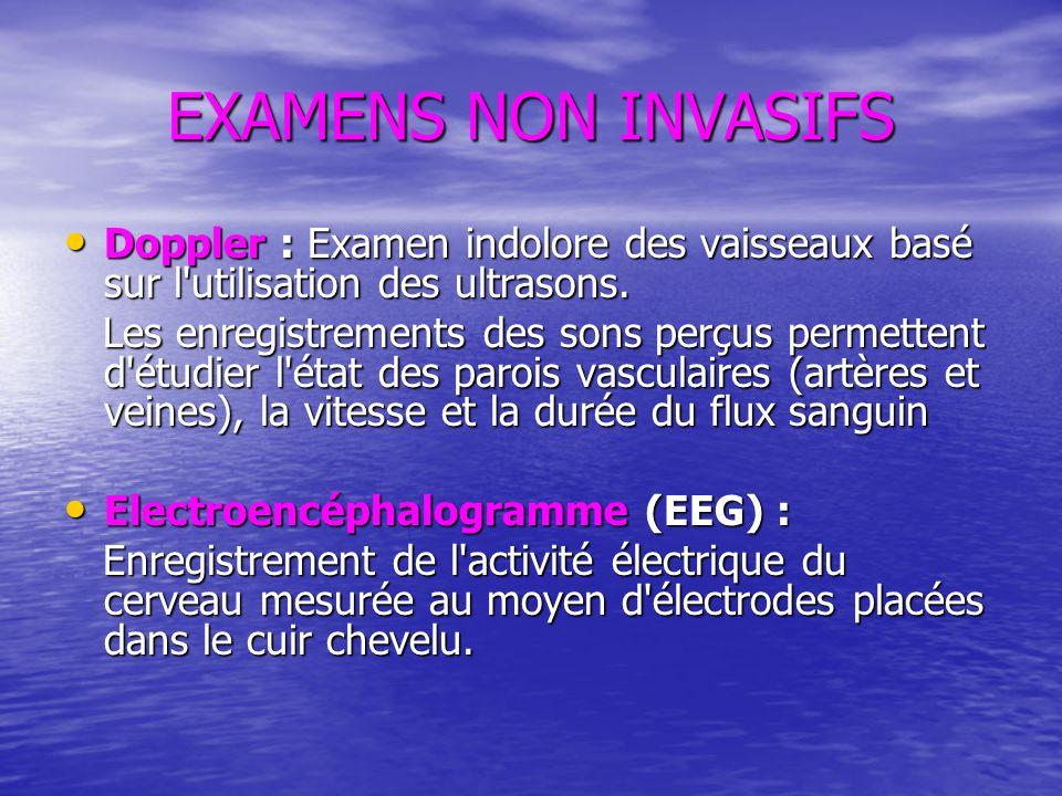 EXAMENS NON INVASIFS Doppler : Examen indolore des vaisseaux basé sur l'utilisation des ultrasons. Doppler : Examen indolore des vaisseaux basé sur l'
