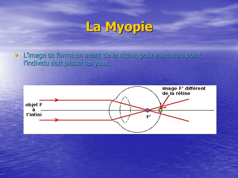 La Myopie Limage se forme en avant de la rétine, pour mettre au point, lindividu doit plisser les yeux. Limage se forme en avant de la rétine, pour me