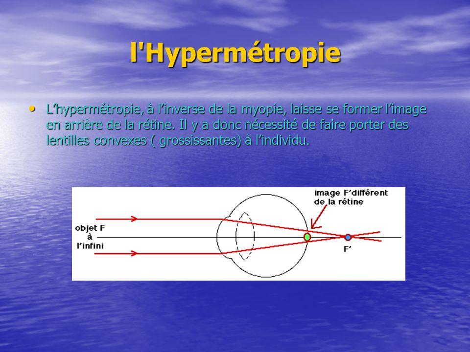 l'Hypermétropie Lhypermétropie, à linverse de la myopie, laisse se former limage en arrière de la rétine. Il y a donc nécessité de faire porter des le