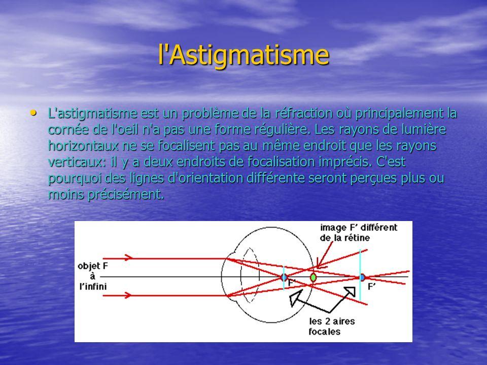 l'Astigmatisme L'astigmatisme est un problème de la réfraction où principalement la cornée de l'oeil n'a pas une forme régulière. Les rayons de lumièr