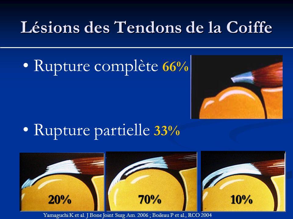 Lésions des Tendons de la Coiffe Rupture complète 66% Rupture partielle 33% Yamaguchi K et al. J Bone Joint Surg Am. 2006 ; Boileau P et al., RCO 2004