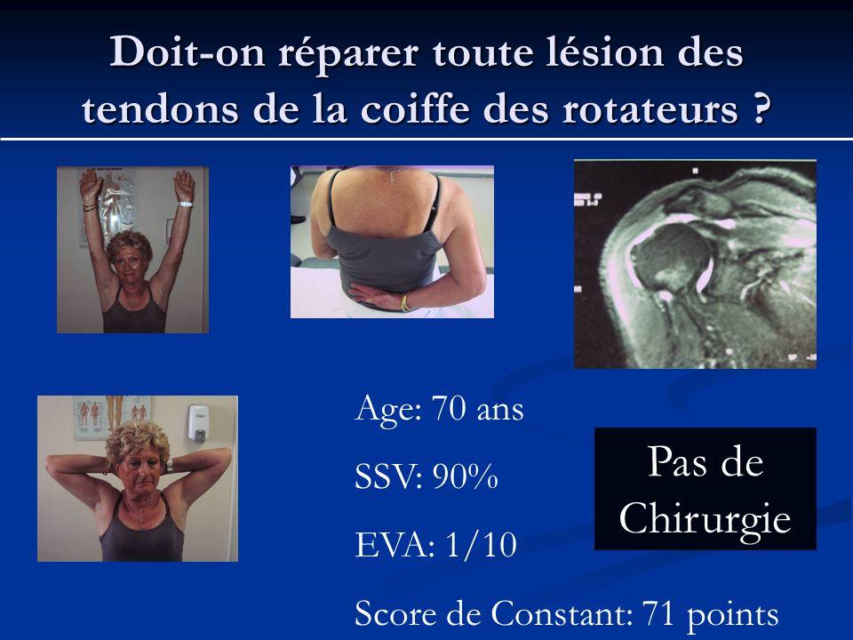 Doit-on réparer toute lésion des tendons de la coiffe des rotateurs ? Age: 70 ans SSV: 90% EVA: 1/10 Score de Constant: 71 points Pas de Chirurgie