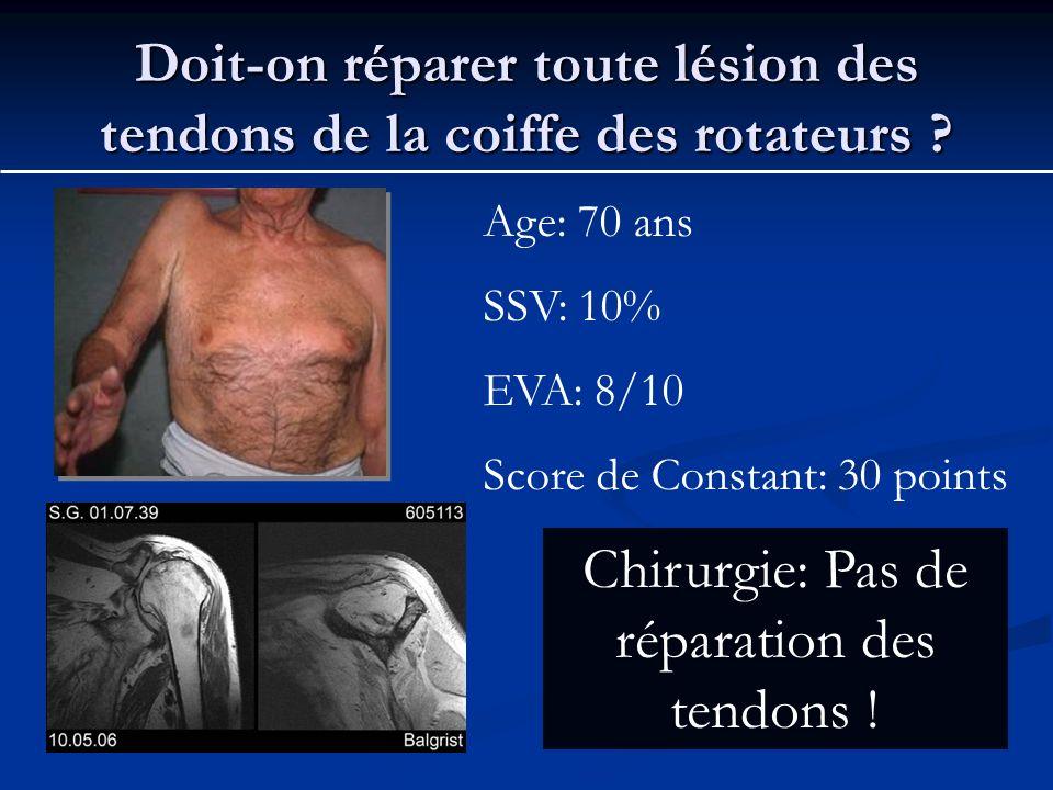 Doit-on réparer toute lésion des tendons de la coiffe des rotateurs ? Age: 70 ans SSV: 10% EVA: 8/10 Score de Constant: 30 points Chirurgie: Pas de ré