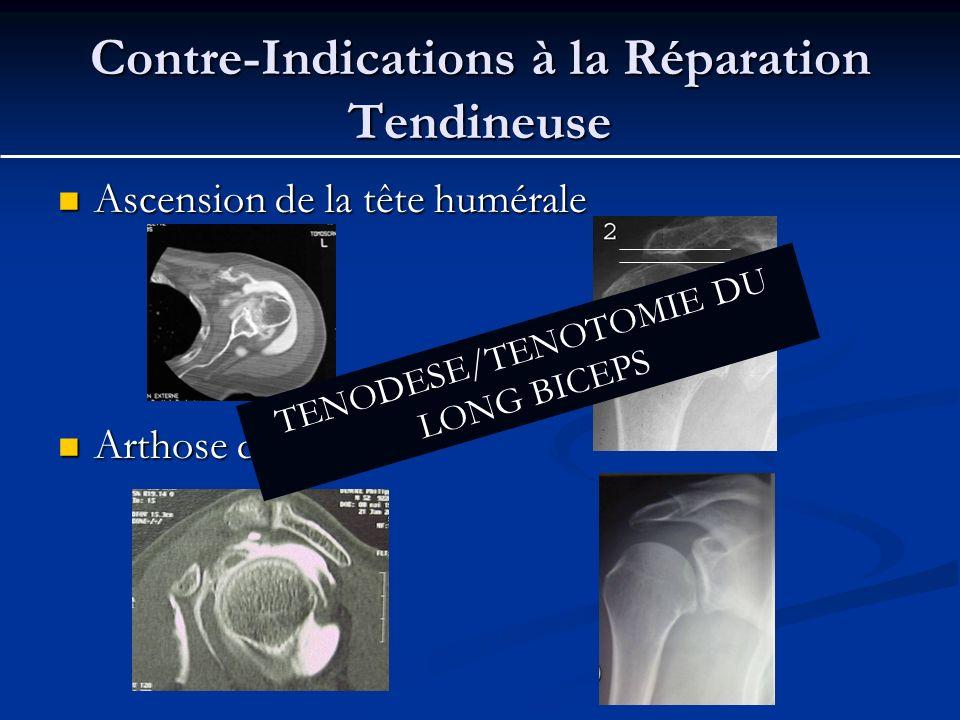 Contre-Indications à la Réparation Tendineuse Ascension de la tête humérale Ascension de la tête humérale Arthose débutante Arthose débutante < 7 mm T