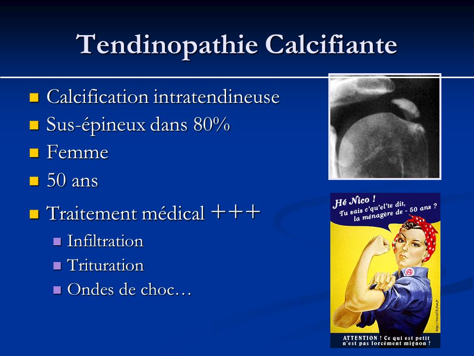 Tendinopathie Calcifiante Calcification intratendineuse Calcification intratendineuse Sus-épineux dans 80% Sus-épineux dans 80% Femme Femme 50 ans 50