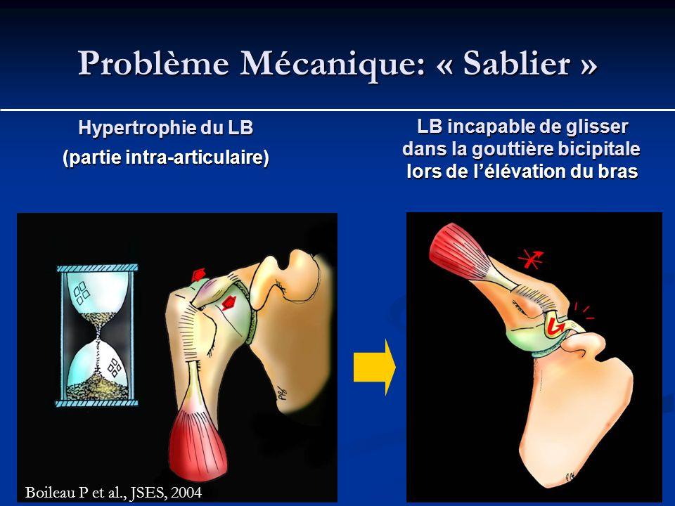 Problème Mécanique: « Sablier » Hypertrophie du LB (partie intra-articulaire) LB incapable de glisser dans la gouttière bicipitale lors de lélévation