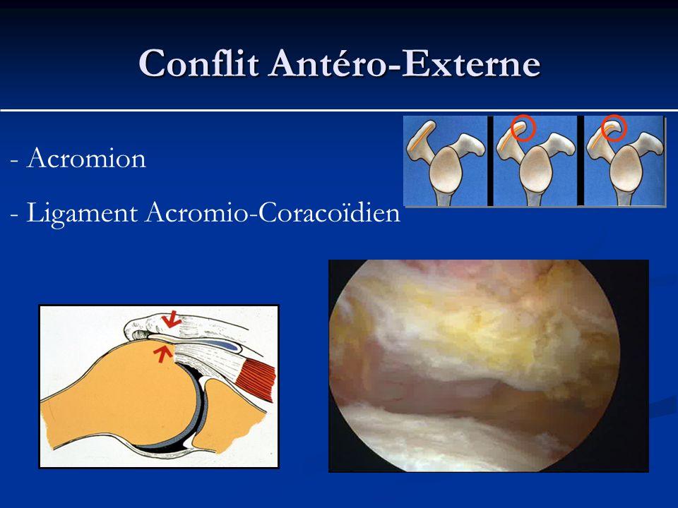 Conflit Antéro-Externe - Acromion - Ligament Acromio-Coracoïdien