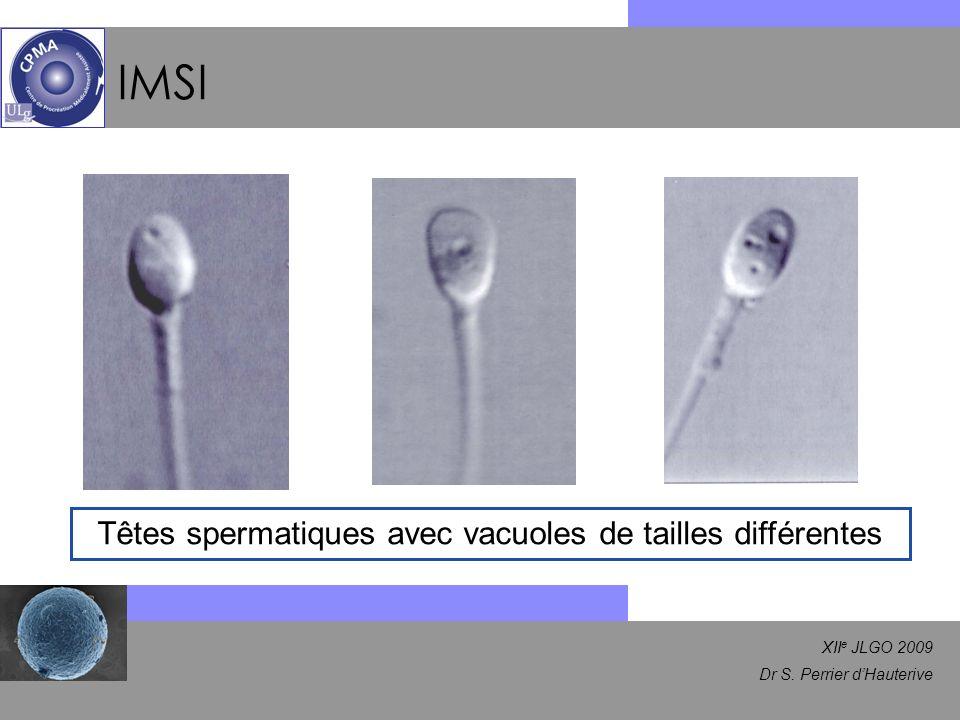 XII e JLGO 2009 Dr S. Perrier dHauterive IMSI Têtes spermatiques avec vacuoles de tailles différentes