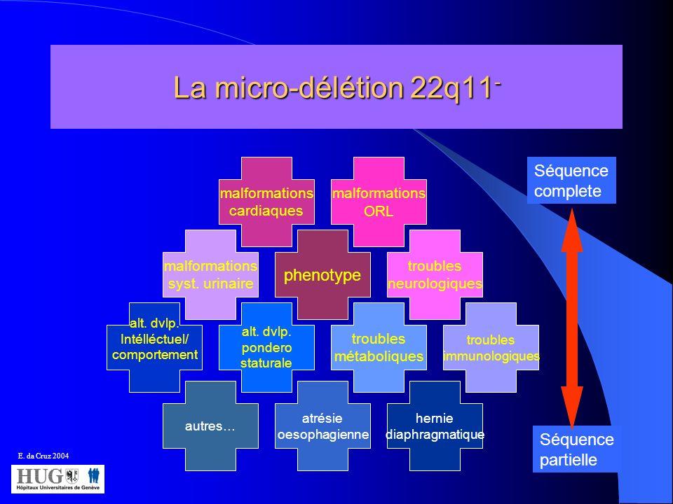 La micro-délétion 22q11 - phenotype troubles métaboliques malformations cardiaques malformations syst. urinaire alt. dvlp. pondero staturale troubles