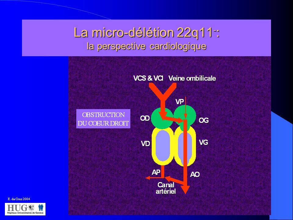 La micro-délétion 22q11 - : la perspective cardiologique E. da Cruz 2004