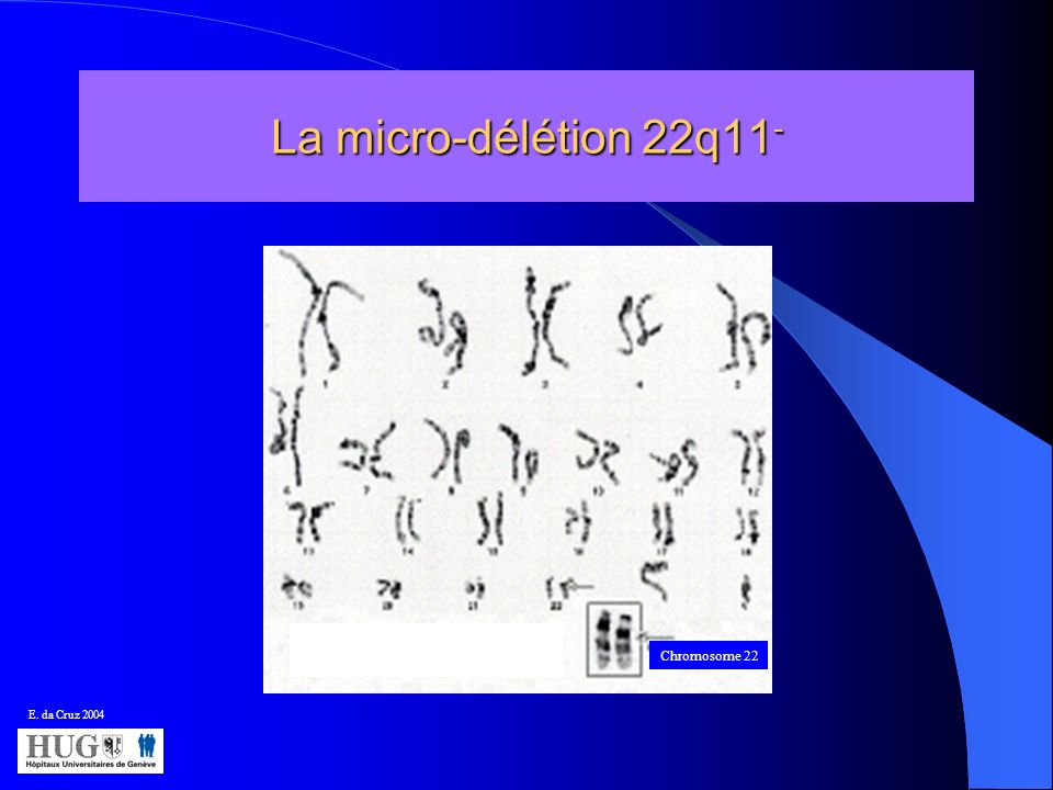 La micro-délétion 22q11 - Chromosome 22 E. da Cruz 2004