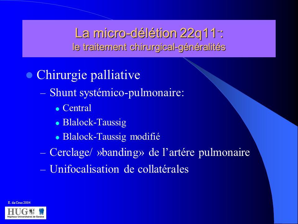 La micro-délétion 22q11 - : le traitement chirurgical-généralités Chirurgie palliative – Shunt systémico-pulmonaire: Central Blalock-Taussig Blalock-T