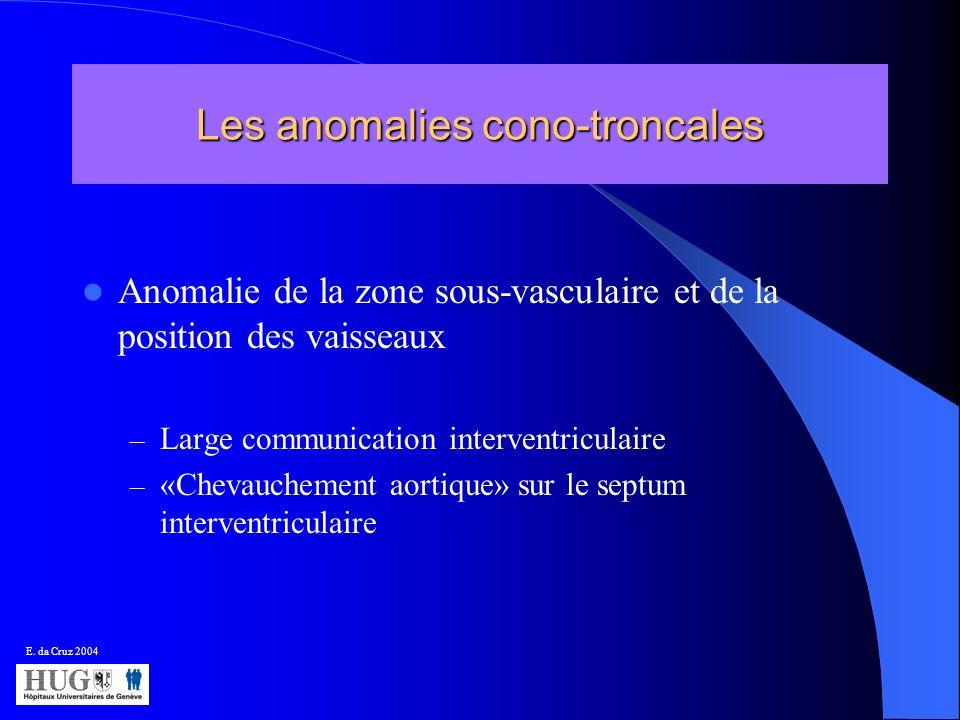 Les anomalies cono-troncales Anomalie de la zone sous-vasculaire et de la position des vaisseaux – Large communication interventriculaire – «Chevauche