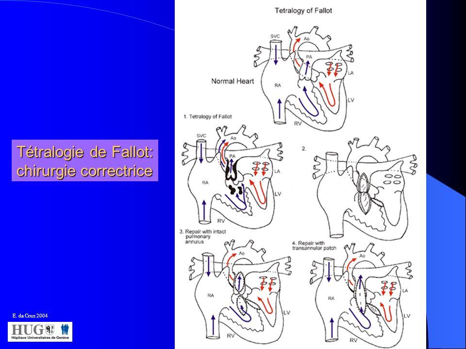 E. da Cruz 2004 Tétralogie de Fallot: chirurgie correctrice