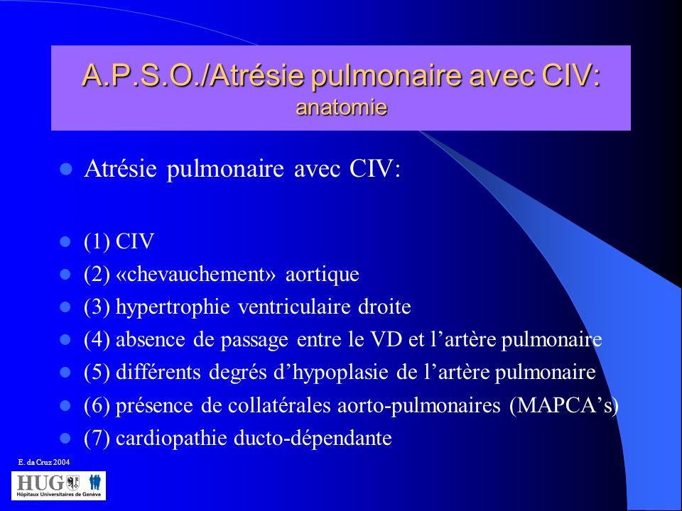 A.P.S.O./Atrésie pulmonaire avec CIV: anatomie Atrésie pulmonaire avec CIV: (1) CIV (2) «chevauchement» aortique (3) hypertrophie ventriculaire droite