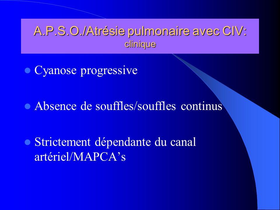 A.P.S.O./Atrésie pulmonaire avec CIV: clinique Cyanose progressive Absence de souffles/souffles continus Strictement dépendante du canal artériel/MAPC
