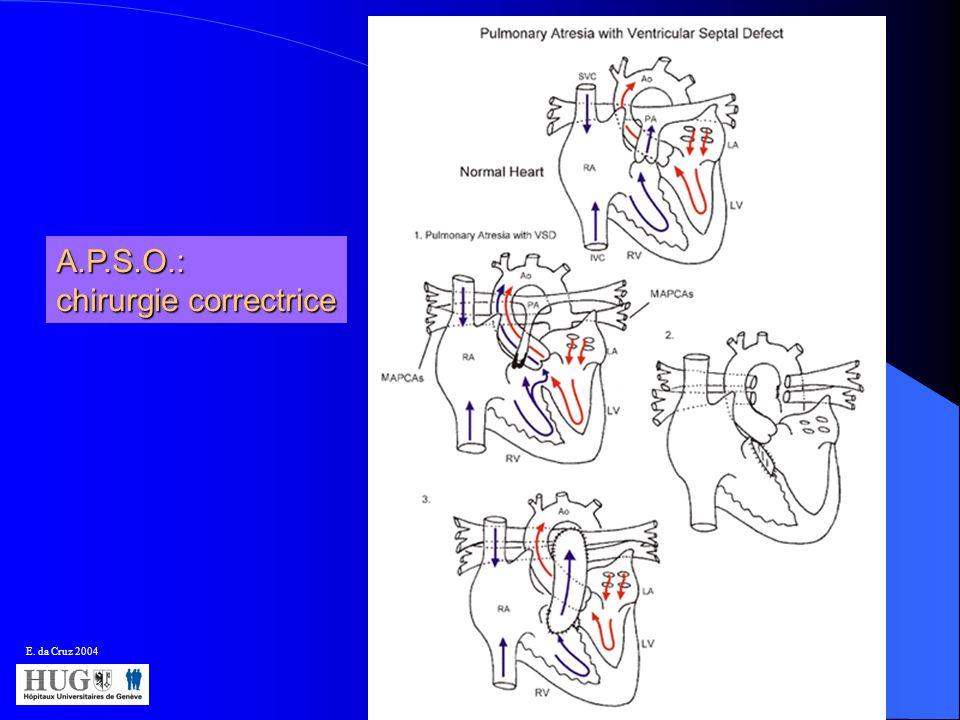 E. da Cruz 2004 A.P.S.O.: chirurgie correctrice