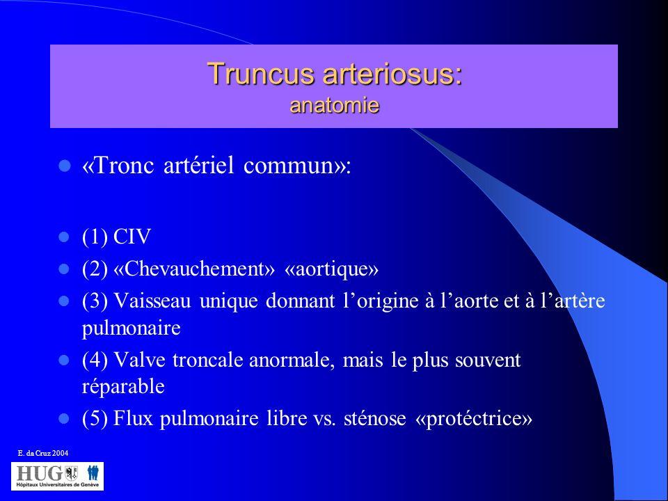 Truncus arteriosus: anatomie «Tronc artériel commun»: (1) CIV (2) «Chevauchement» «aortique» (3) Vaisseau unique donnant lorigine à laorte et à lartèr