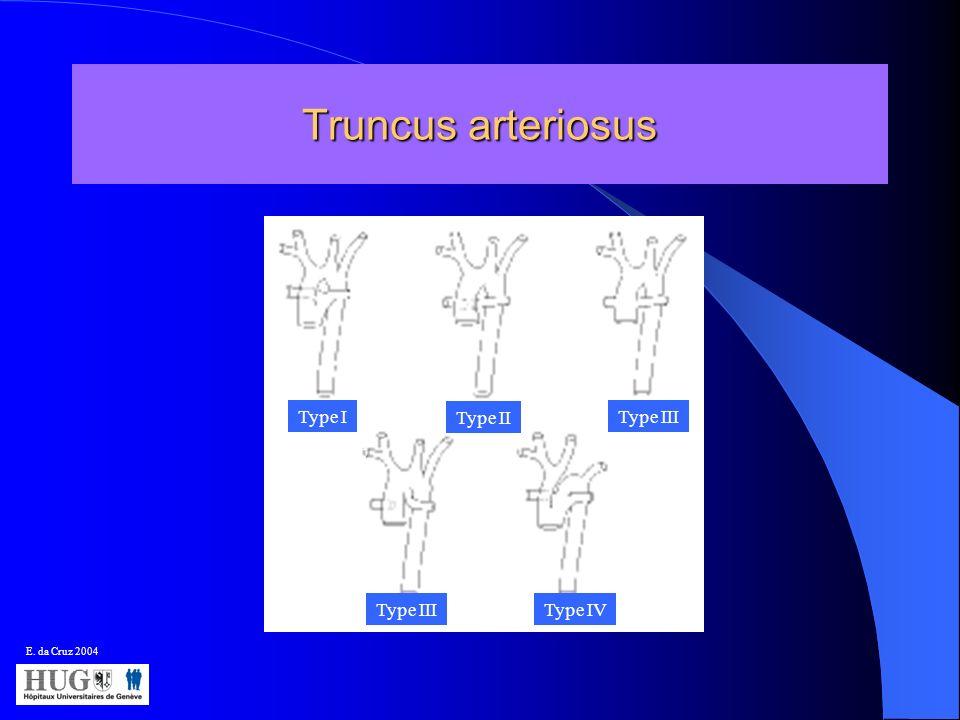 Truncus arteriosus Type 1 Type I Type II Type III Type IV E. da Cruz 2004