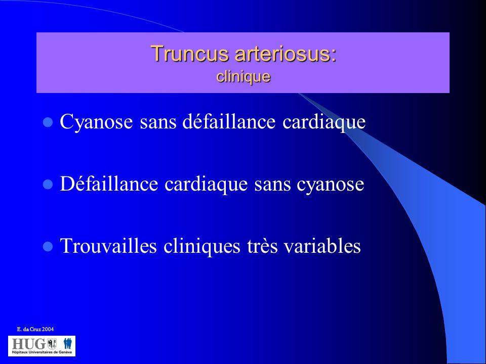 Truncus arteriosus: clinique Cyanose sans défaillance cardiaque Défaillance cardiaque sans cyanose Trouvailles cliniques très variables E. da Cruz 200