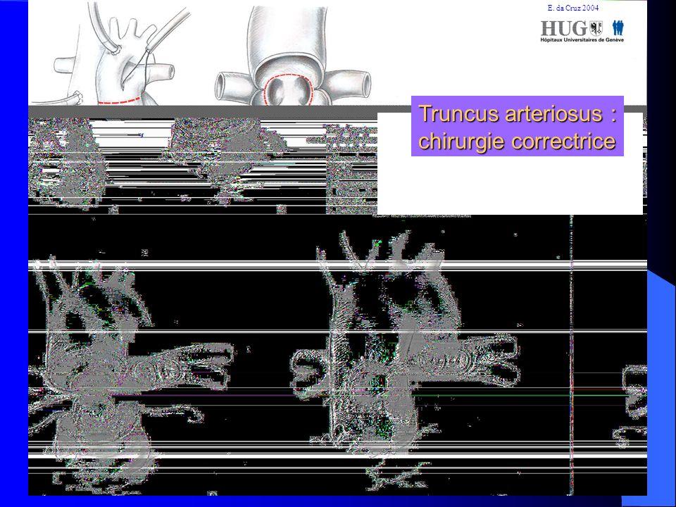 Truncus arteriosus : chirurgie correctrice E. da Cruz 2004