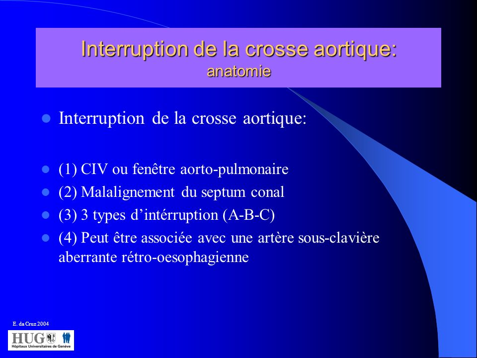 Interruption de la crosse aortique: anatomie Interruption de la crosse aortique: (1) CIV ou fenêtre aorto-pulmonaire (2) Malalignement du septum conal