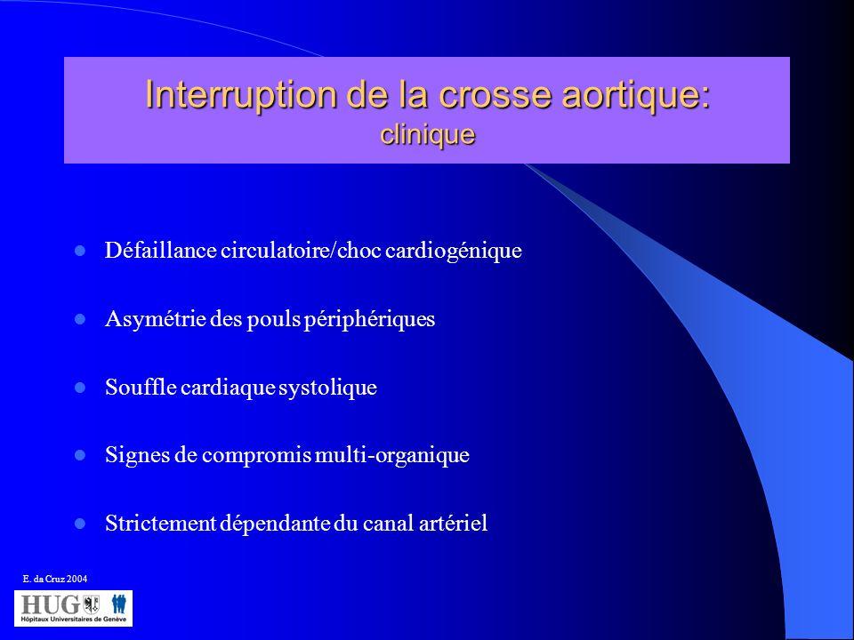 Interruption de la crosse aortique: clinique Défaillance circulatoire/choc cardiogénique Asymétrie des pouls périphériques Souffle cardiaque systoliqu