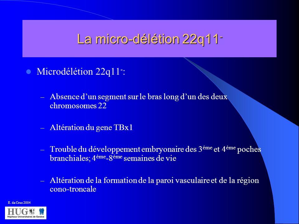 La micro-délétion 22q11 - Microdélétion 22q11 - : – Absence dun segment sur le bras long dun des deux chromosomes 22 – Altération du gene TBx1 – Troub