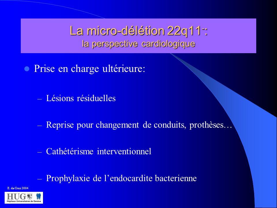 La micro-délétion 22q11 - : la perspective cardiologique Prise en charge ultérieure: – Lésions résiduelles – Reprise pour changement de conduits, prot