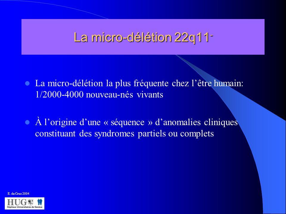 La micro-délétion 22q11 - La micro-délétion la plus fréquente chez lêtre humain: 1/2000-4000 nouveau-nés vivants À lorigine dune « séquence » danomali