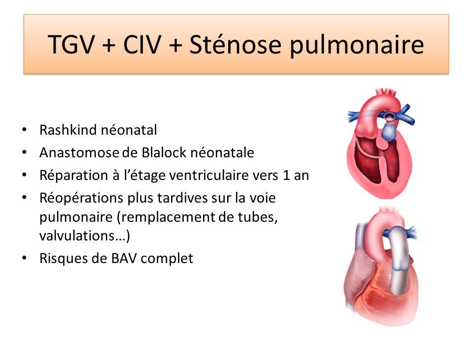 TGV + CIV + Sténose pulmonaire Rashkind néonatal Anastomose de Blalock néonatale Réparation à létage ventriculaire vers 1 an Réopérations plus tardive