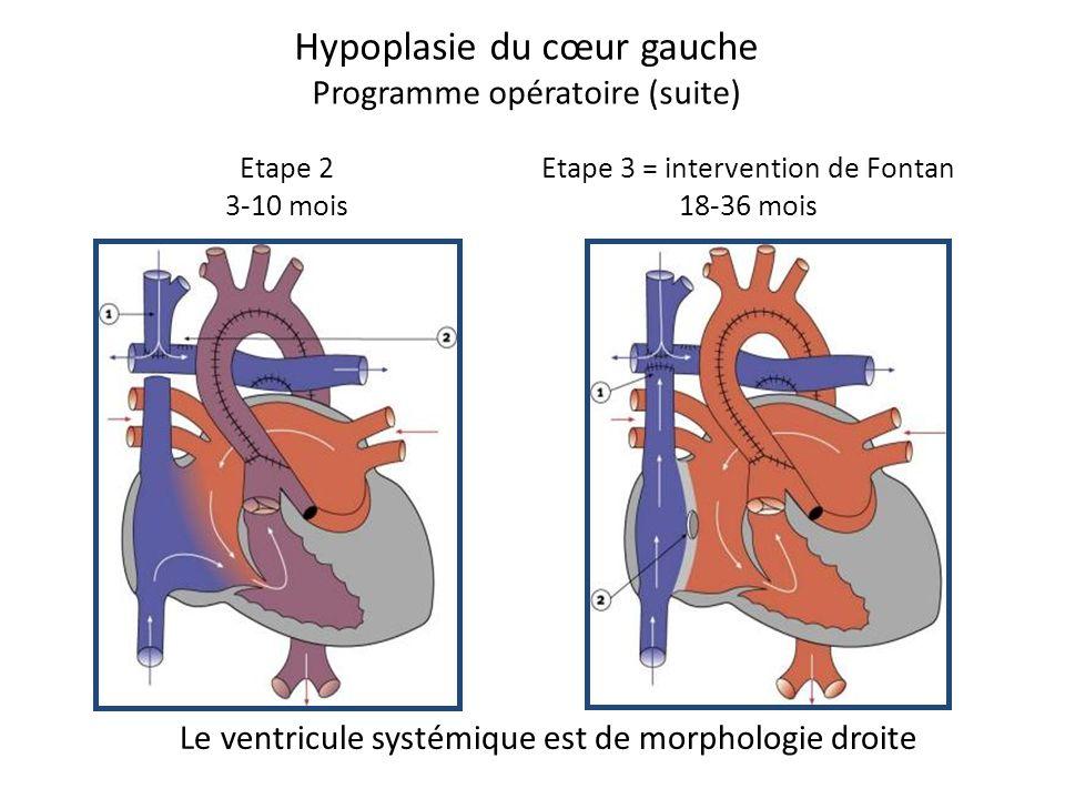 Hypoplasie du cœur gauche Programme opératoire (suite) Etape 2 3-10 mois Etape 3 = intervention de Fontan 18-36 mois Le ventricule systémique est de m