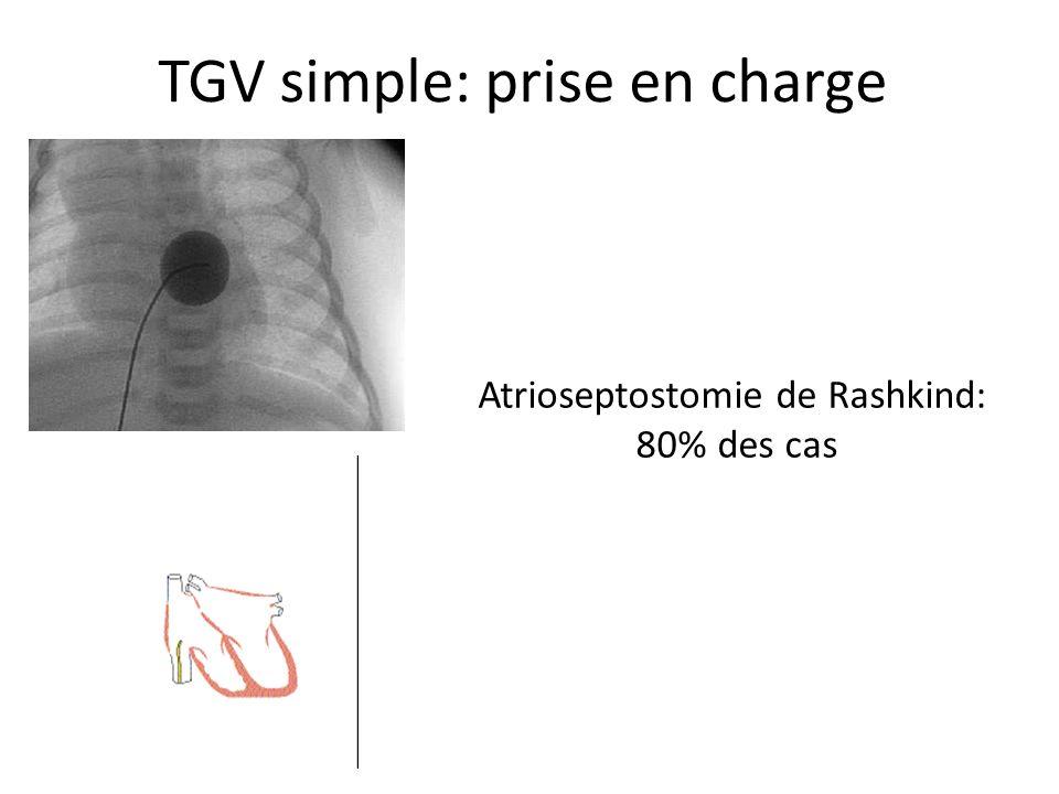 TGV simple: prise en charge Atrioseptostomie de Rashkind: 80% des cas