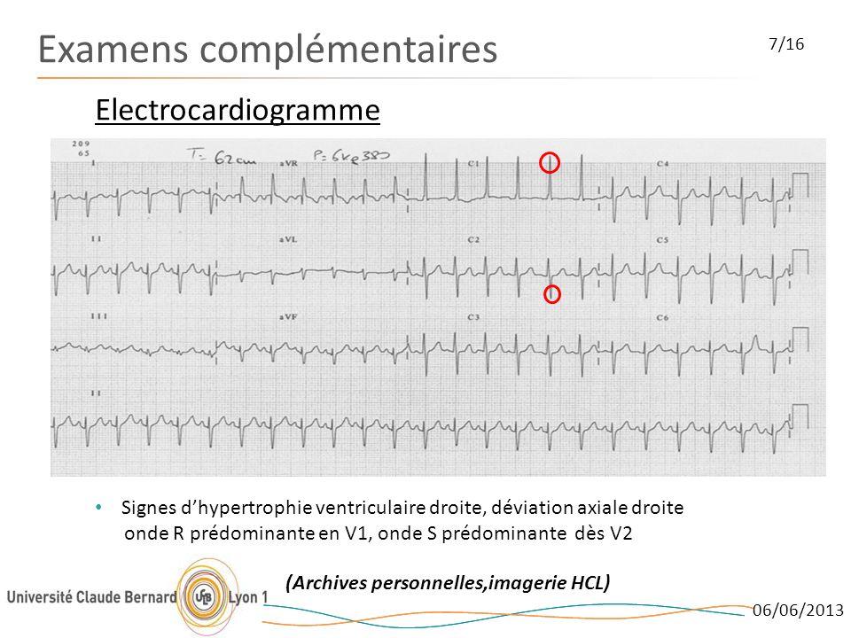 06/06/2013 Examens complémentaires Electrocardiogramme 7/16 Signes dhypertrophie ventriculaire droite, déviation axiale droite onde R prédominante en