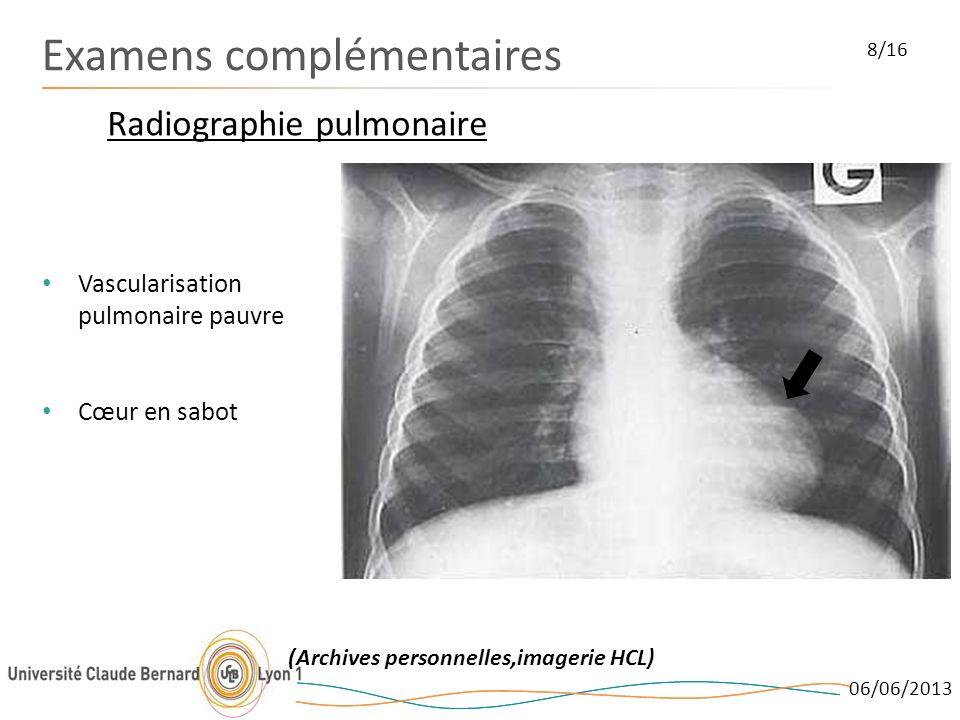 06/06/2013 Examens complémentaires Radiographie pulmonaire 8/16 Vascularisation pulmonaire pauvre Cœur en sabot (Archives personnelles,imagerie HCL)