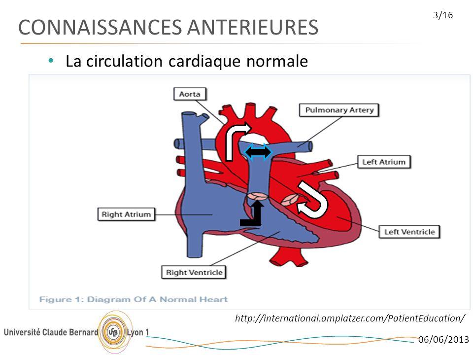 06/06/2013 3/16 CONNAISSANCES ANTERIEURES La circulation cardiaque normale http://international.amplatzer.com/PatientEducation/