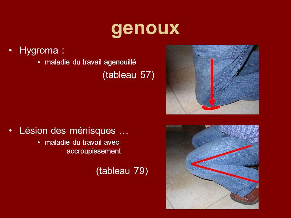 genoux Hygroma : maladie du travail agenouillé (tableau 57) Lésion des ménisques … maladie du travail avec accroupissement (tableau 79)