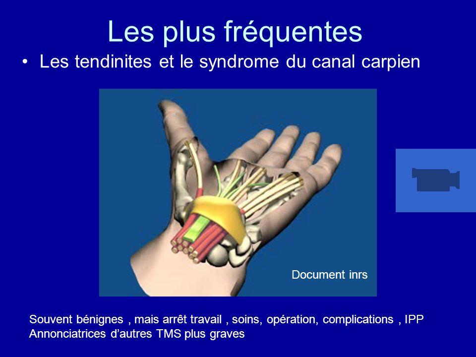 Les plus fréquentes Les tendinites et le syndrome du canal carpien Souvent bénignes, mais arrêt travail, soins, opération, complications, IPP Annoncia