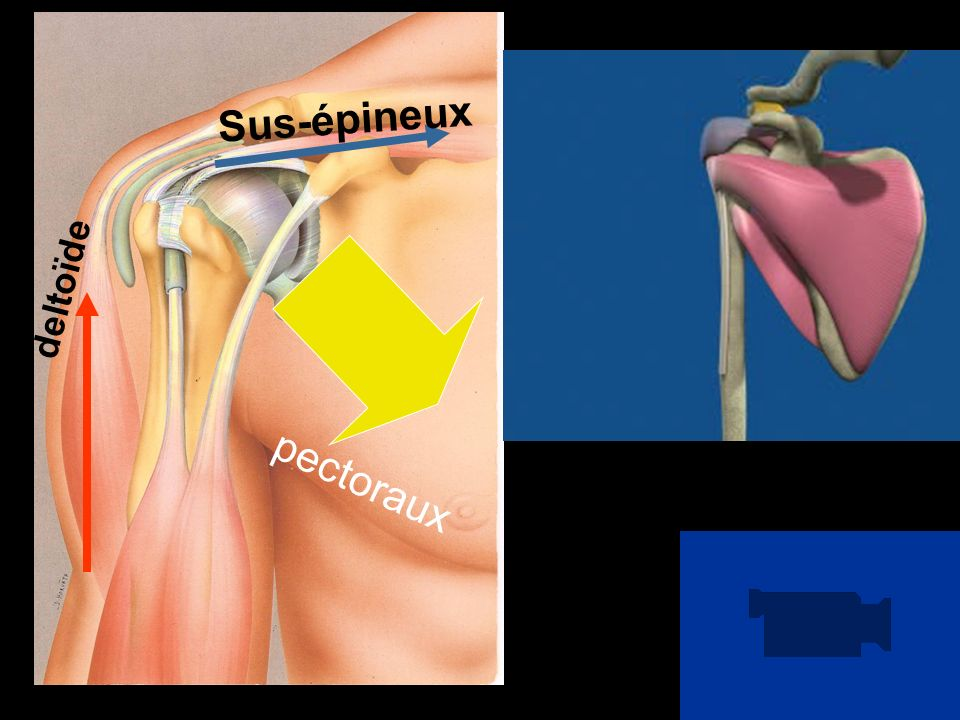 Sus-épineux GRAND PECTORAL GRAND DORSAL Répétition de nombreuses fois et en force, Usure Faillite du système : deltoïde