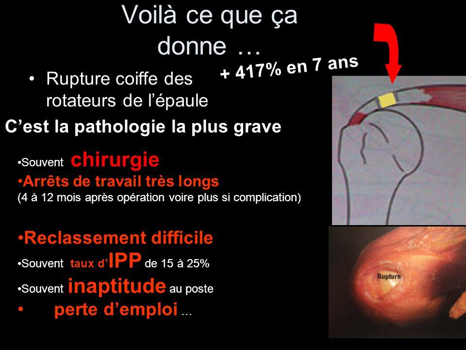 Les statistiques 14 à 20% de la population active souffre dune épaule –50% des sujets concernés ne consultent pas de médecin et souffrent en silence 15% ont une lésion après 50 ans 7% avant 50 ans 30% des français ont une perforation des tendons de lépaule (coiffe des rotateurs) après 60 ans sans le savoir