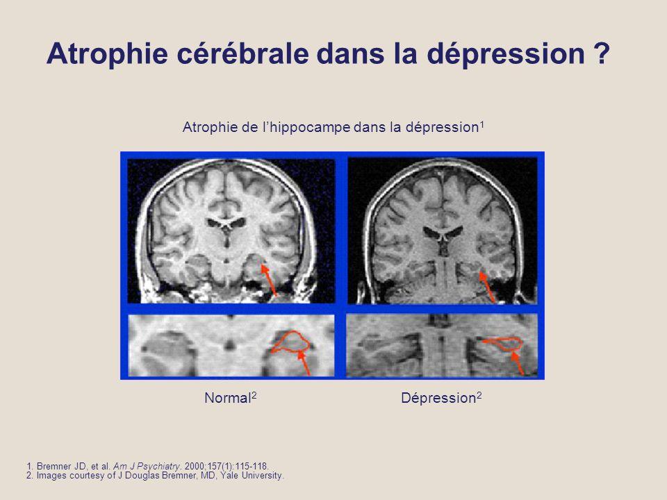 Atrophie cérébrale dans la dépression .1. Bremner JD, et al.