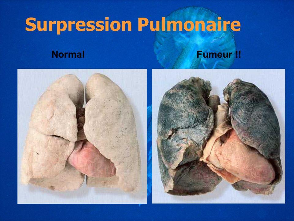 Fumeur !!Normal Surpression Pulmonaire
