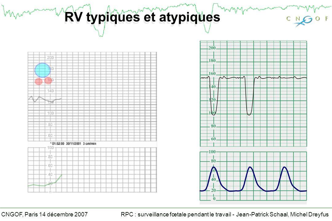 RPC : surveillance fœtale pendant le travail - Jean-Patrick Schaal, Michel DreyfusCNGOF, Paris 14 décembre 2007 RV typiques et atypiques